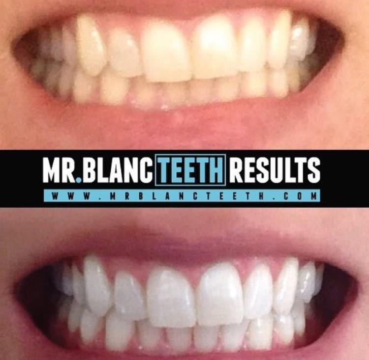 MrBlancTeeth hambavalgenduse ribad